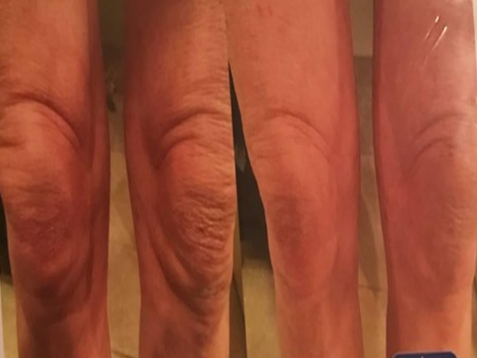 Crepey Knees