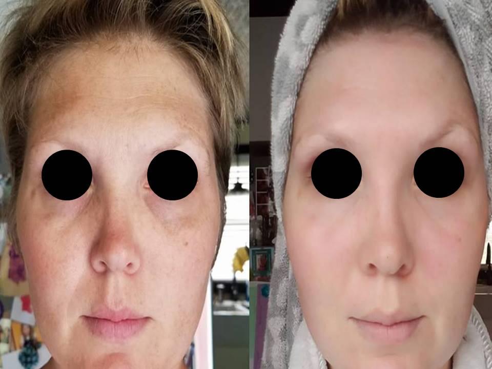 LED Skin Care Spa Results