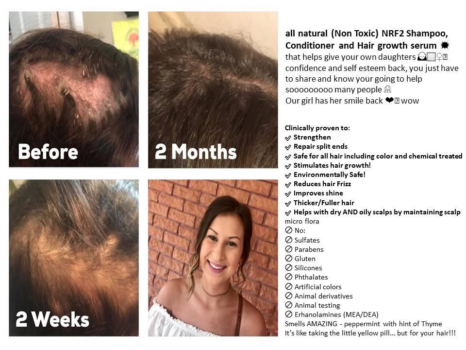 Hair growth in 2 months