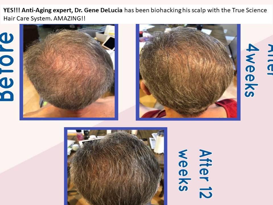 Hair Growth 12 weeks